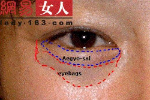 Aegyo-Sal2-550x367_s