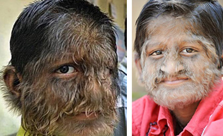 【驚き】動物のような多毛症の人物たち10選【画像集】