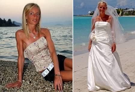 a97982_anorexia_9-bride